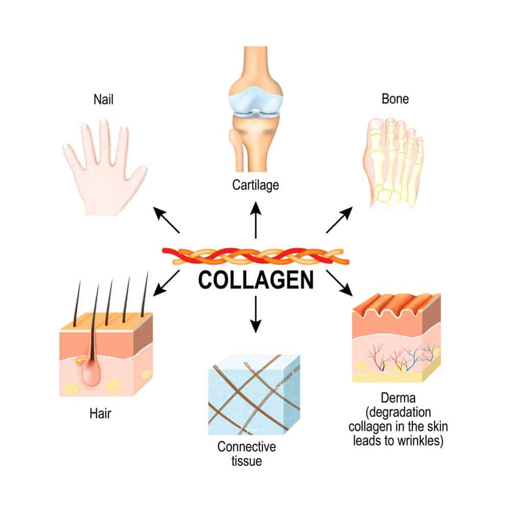 Collagen type