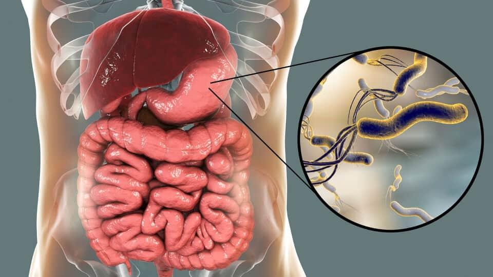 幽門螺旋桿菌 (英文: Helicobacter pylori)