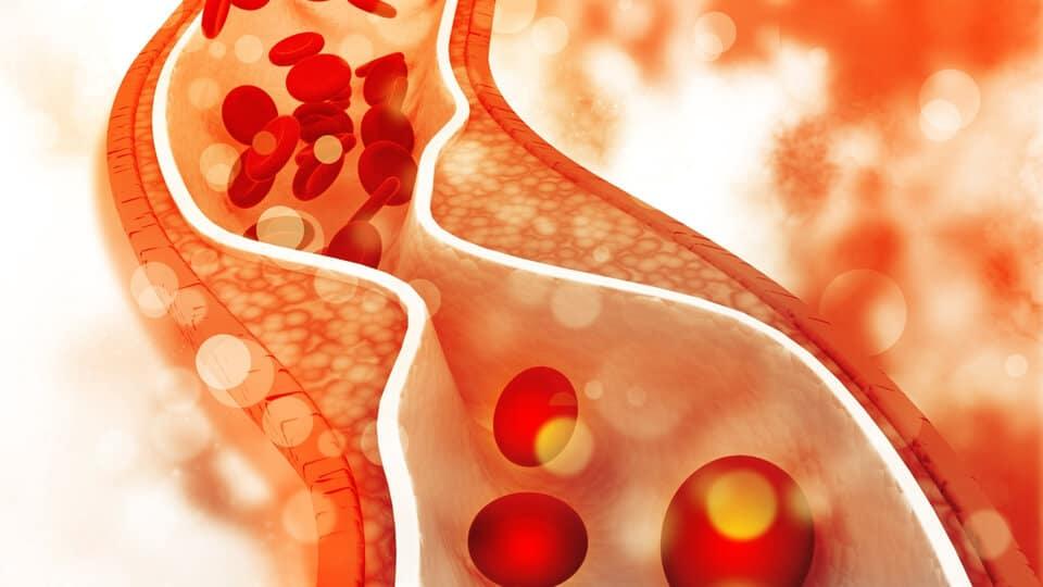 高密度膽固醇濃度HDL
